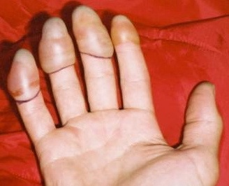 Hand recovering from frostbite