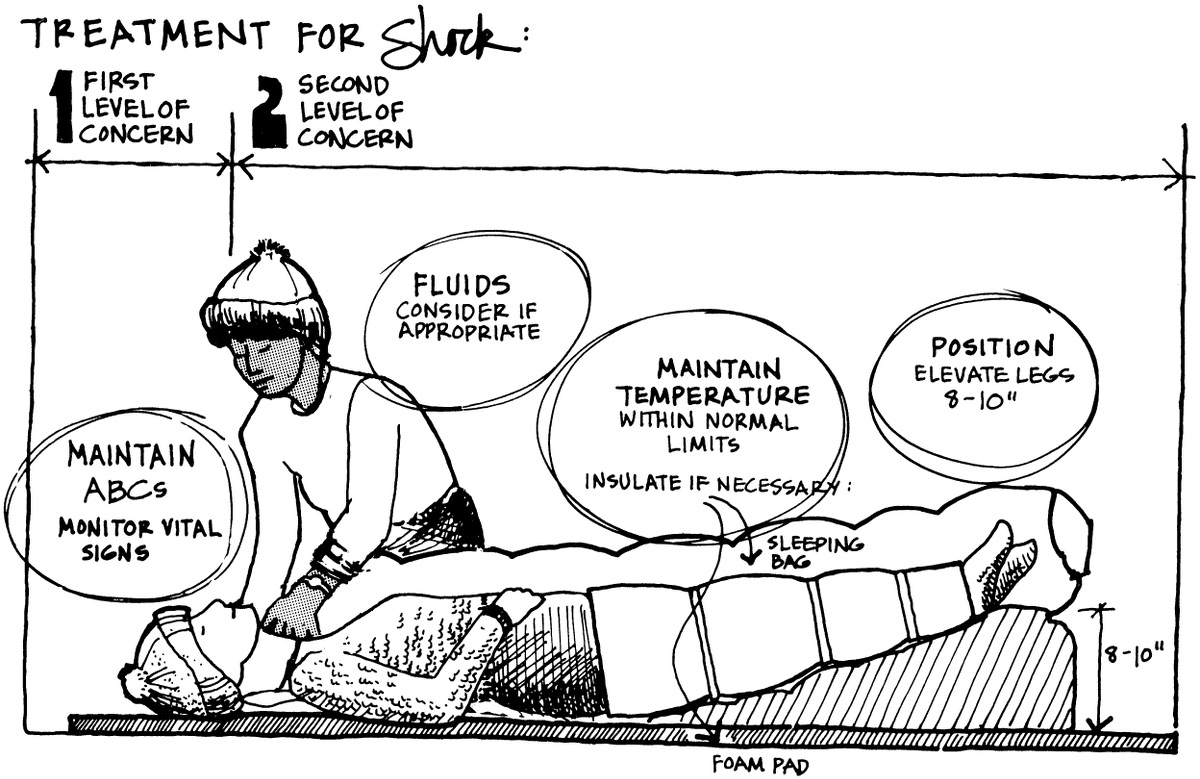 "Diagram of a patient with elevated legs in ""shock position"""